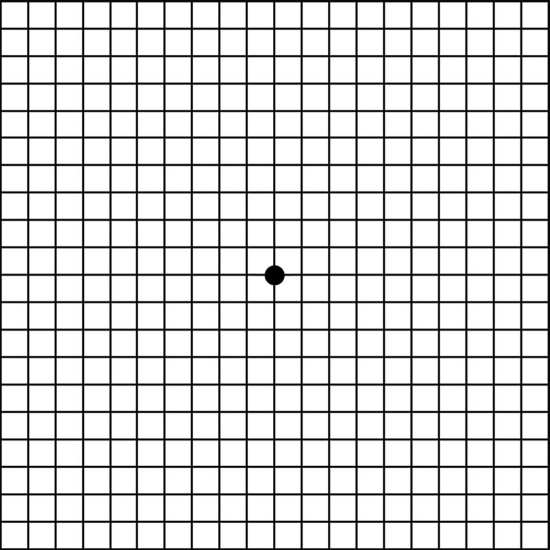 It is a picture of Ambitious Printable Amsler Grid